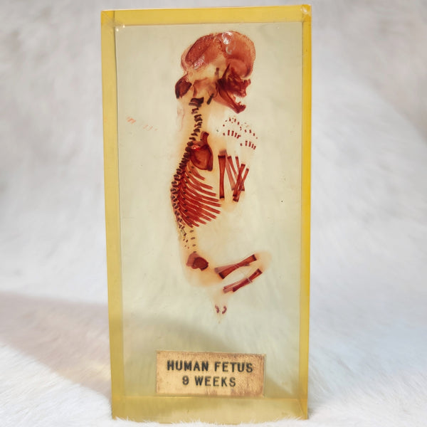 Human Fetus, Diaphonized (In Lucite)