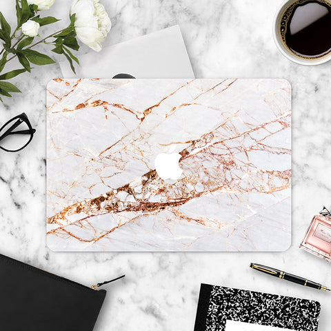 Macbook Skin Marble Decal Sticker - Rose Gold Pink Marble - CaseCarnival- Macbook Decal Sticker