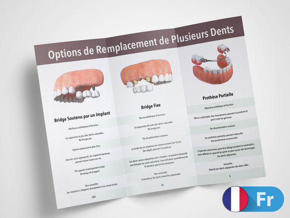 Multiple Teeth Replacement Options 11x8.5 Brochures (French)