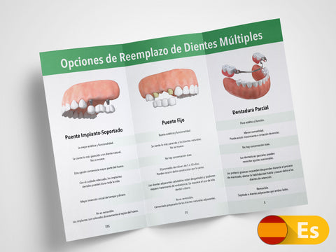 Multiple Teeth Replacement Options 11x8.5 Brochures (Spanish)