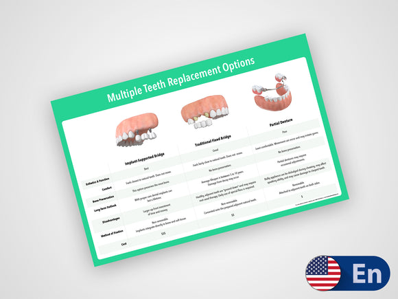 Multiple Teeth Replacement Options 17x11 Dry-Erase Treatment Presentation Aide