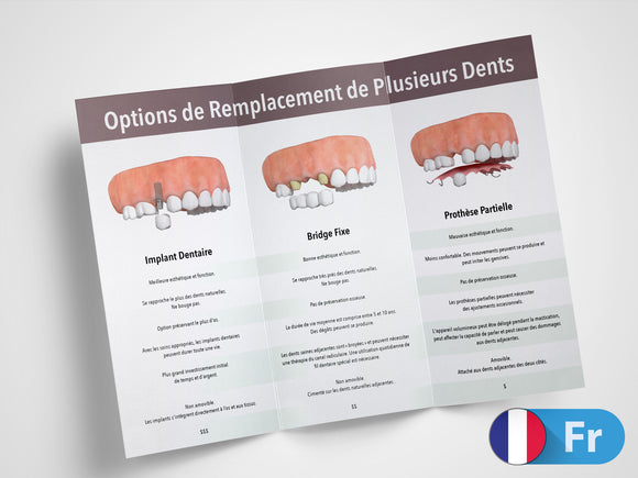 Single Tooth Replacement Options 11x8.5 Brochures (French)