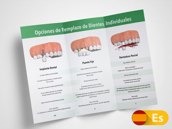 Single Tooth Replacement Options 11x8.5 Brochures (Spanish)