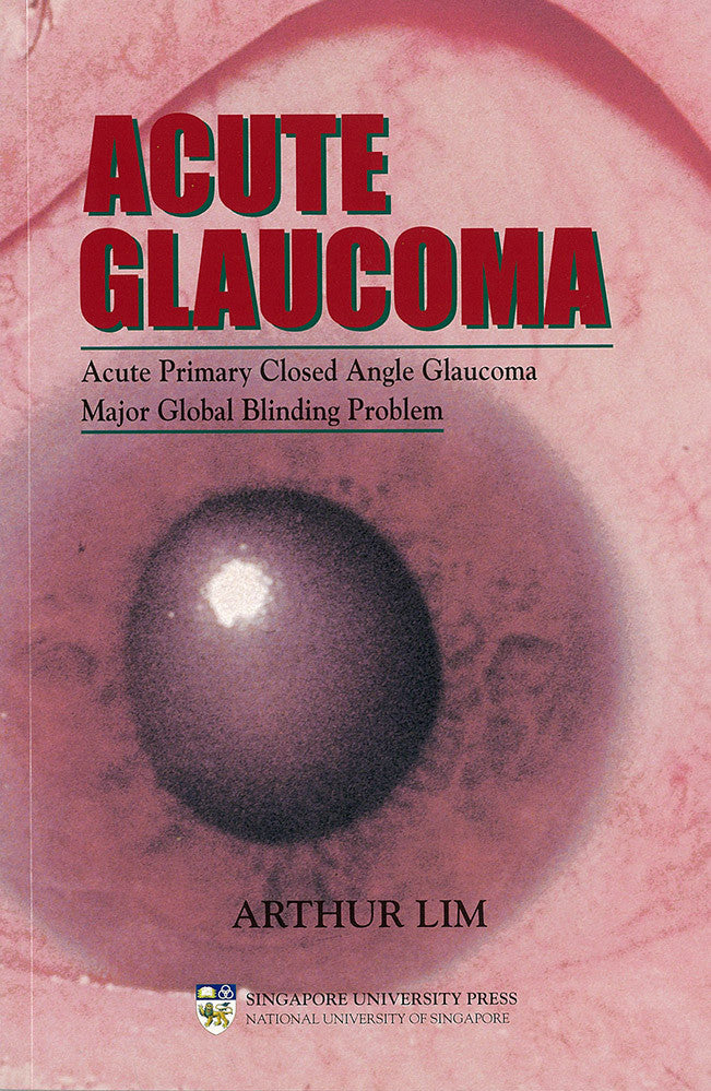 Acute Glaucoma: Acute Primary Closed Angle Glaucoma. Major Global Blinding Problem