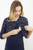 CROP JACKET MATERNITY/NURSING DRESS