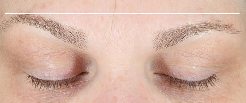 Close shot of eyebrows after using NuFace Trinity. They are raised.