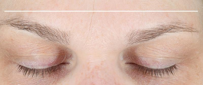 Close shot of eyebrows before using NuFace Trinity