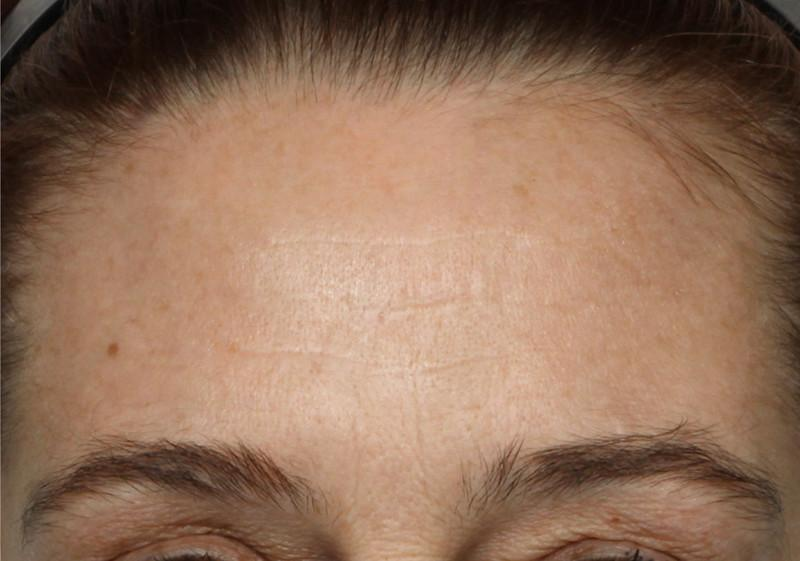 Shot of woman's forehead after using NuFace Trinity; her wrinkles are less severe