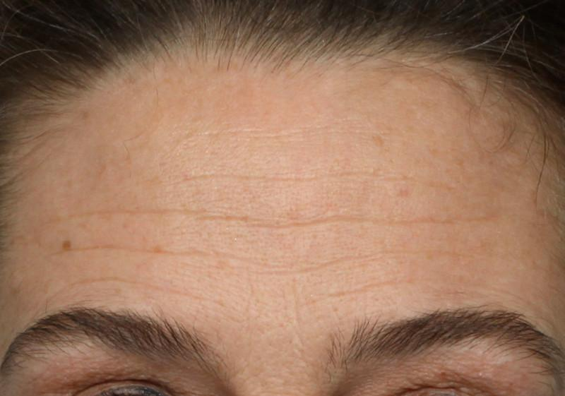 Shot of woman's forehead before using NuFace Trinity