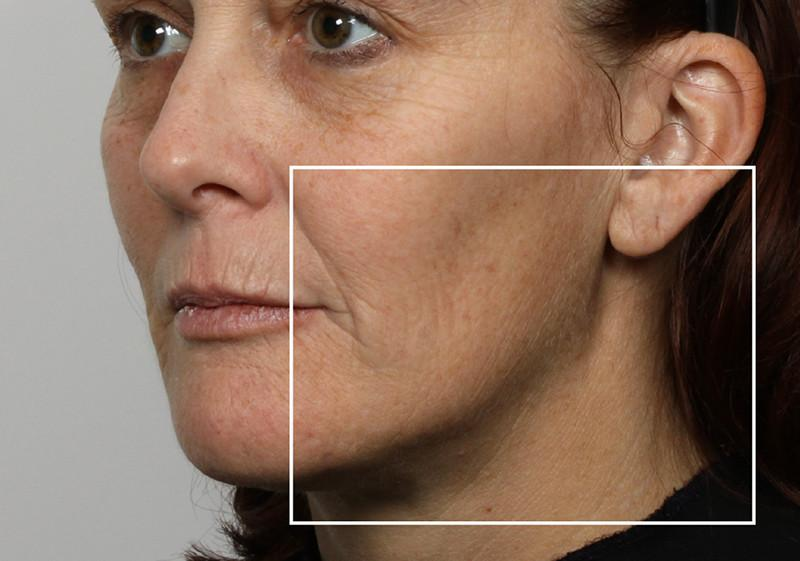 Woman after using NuFace Trinity in 3/4 profile; her jawline is more defined than before