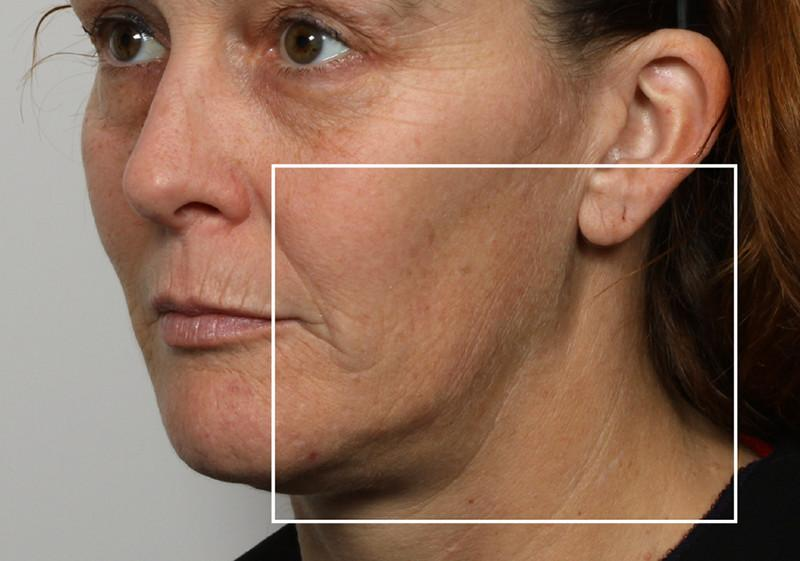 Woman before using NuFace Trinity in 3/4 profile