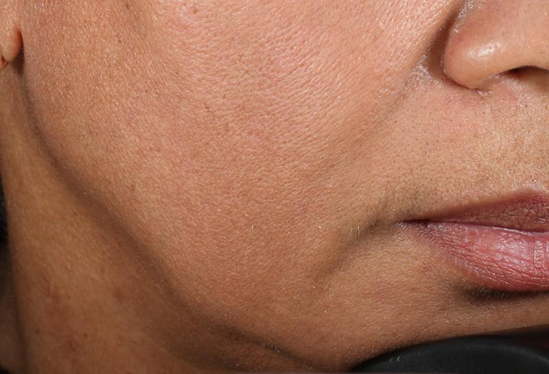 Close shot of woman's jaw after using NuFace Trinity; it is more defined