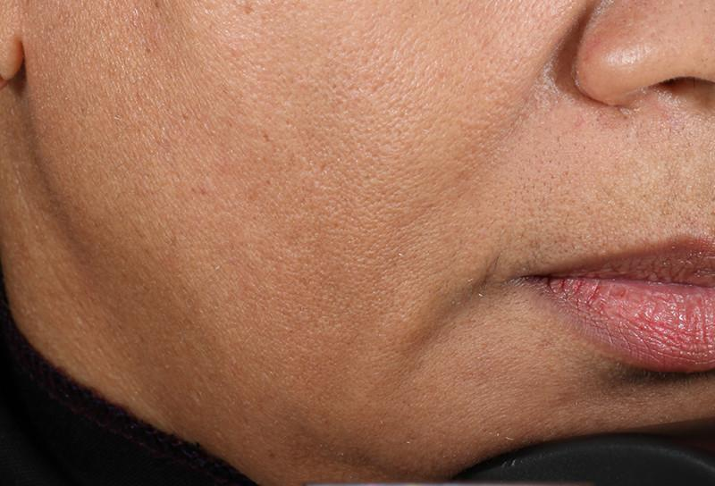 Close shot of woman's jaw before using NuFace Trinity