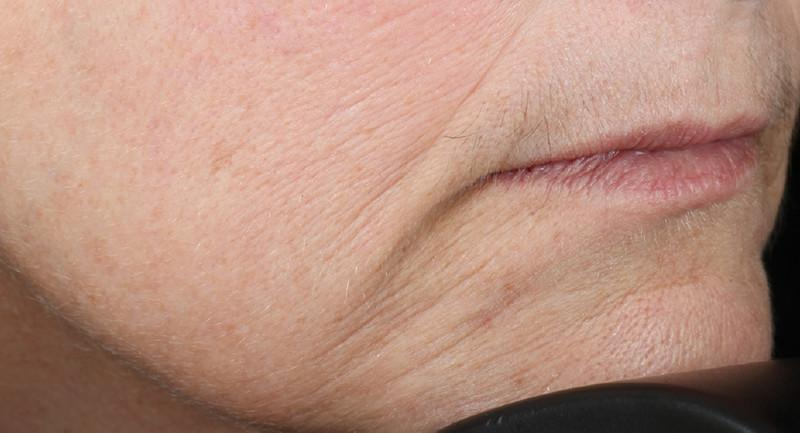 Close shot of woman's chin and mouth after using NuFace Trinity; her wrinkles are less severe.