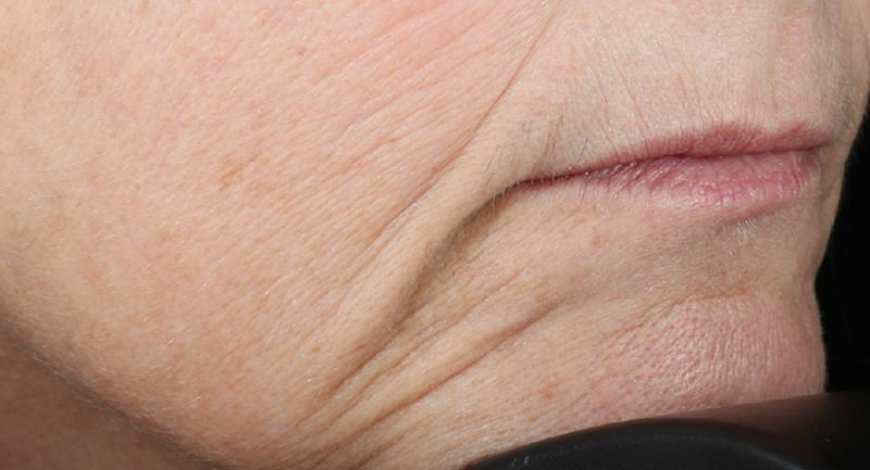 Close shot of woman's chin and mouth before using NuFace Trinity