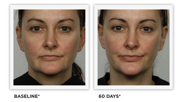 Clinically Tested - images - Improved Tone, Defined Facial Contour, Lifted Corner of Mouth