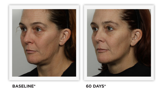 Clinically Tested - images - Tighter, Lifted Skin, Defined Jawline, Smoothed Wrinkles