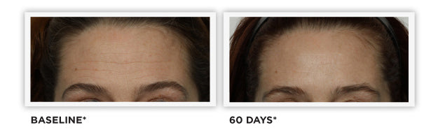 Clinically Tested - images - Diminished Wrinkles