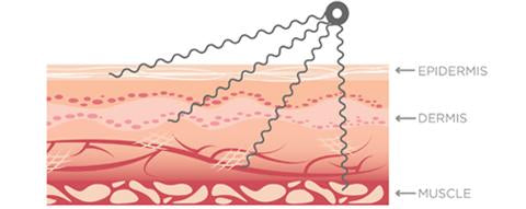Microcurrent Therapy Image – Treatment penetrates the epidermis, dermis and muscle.