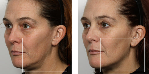 Microcurrent: Therapy, Treatment, Machine, Facial &a      NuFACE