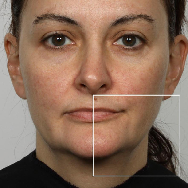 Woman before using NuFace Trinity