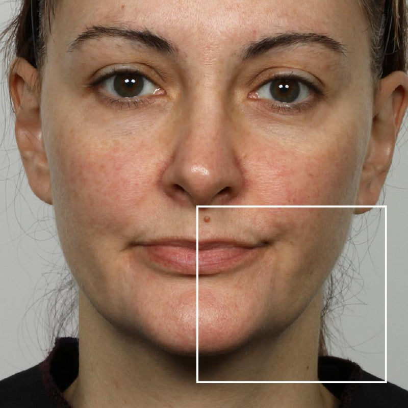Woman after using NuFace Trinity; her lower cheek and jawline are more defined