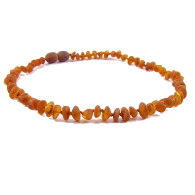 "Amber Monkey Baltic Amber Necklace (10""-11"") - Raw Cognac"