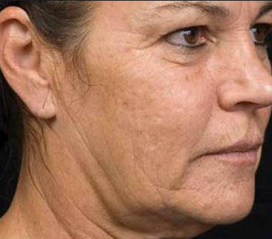How to get rid of wrinkled neck skin