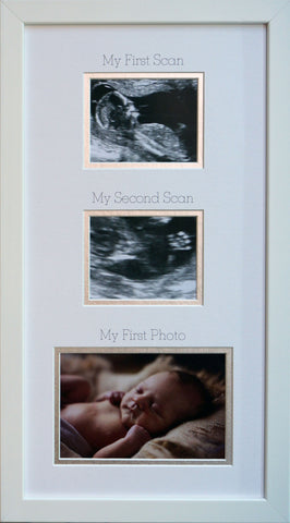 Ultrasound Wall Art - My First Scan & My First Photo