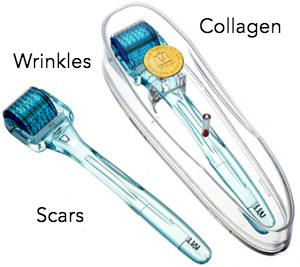 DOES SKIN ROLLER REALLY WORK?