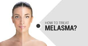 How to get rid of Melasma At Home With Safe Products?