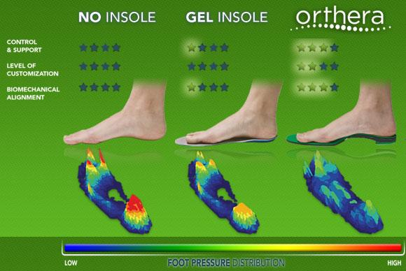 Foot Pain: Insoles vs. Orthotic Inserts