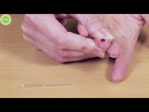 CNS Micropipette Blood Collection Video