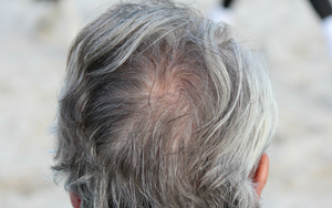 Why Hair Turns Gray and Goes Bald?
