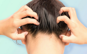 Five Reasons Your Scalp is Itchy