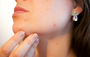 How Stress Can Affect Your Skin? A Dermatologist Explains It