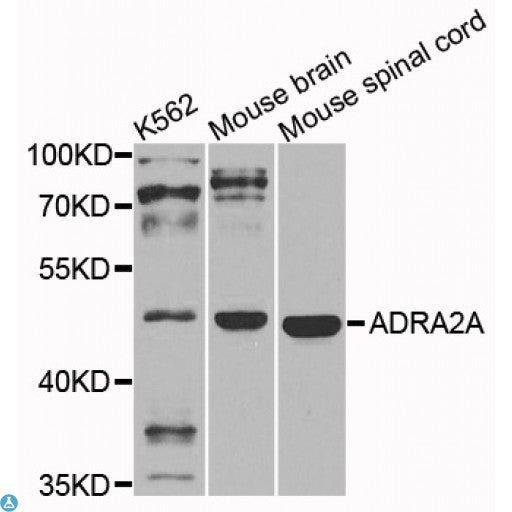 Buy Anti-ADRA2A Antibody Online from St John Labs