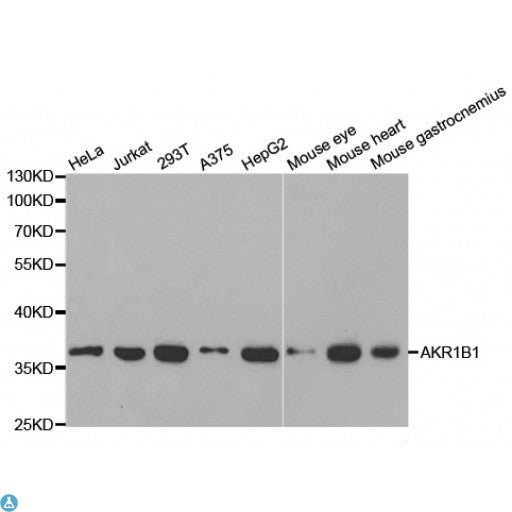 Buy Anti-AKR1B1 Antibody Online from St John Labs