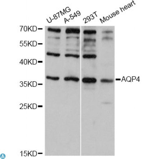 Buy Anti-AQP4 Antibody Online from St John Labs