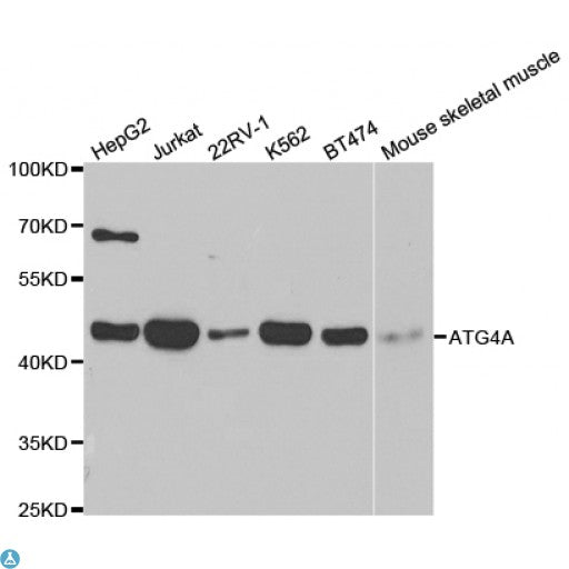 Buy Anti-ATG4A Antibody Online from St John Labs