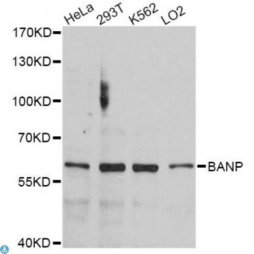 Buy Anti-BANP Antibody Online from St John Labs