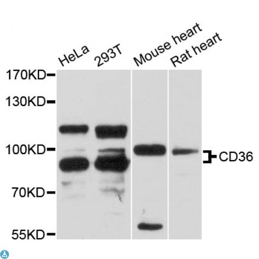 Buy Anti-CD36 Antibody Online from St John Labs