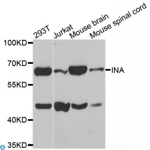 Buy Anti-INA Antibody Online from St John Labs