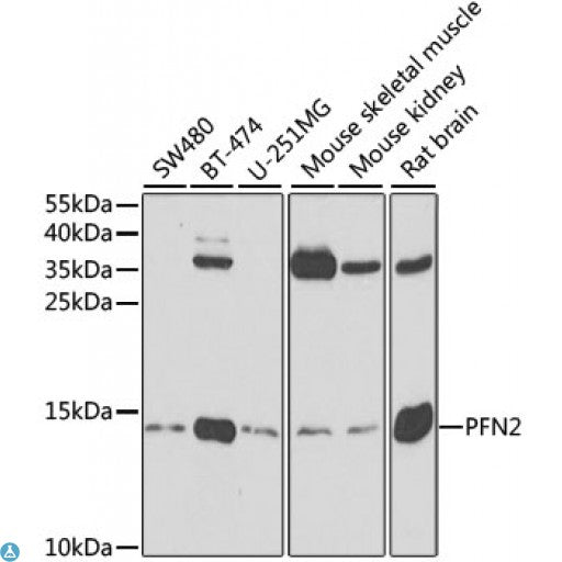 Buy Anti-PFN2 Antibody Online from St John Labs