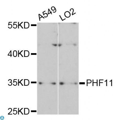 Buy Anti-PHF11 Antibody Online from St John Labs
