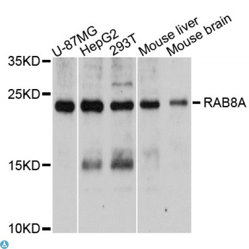 Buy Anti-RAB8A Antibody Online from St John Labs