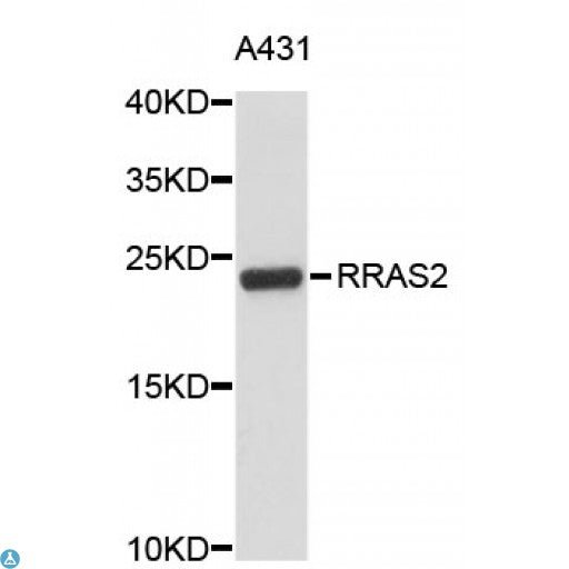 Buy Anti-RRAS2 Antibody Online from St John Labs