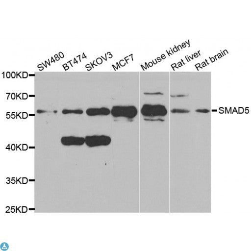 Buy Anti-Smad5 Antibody Online from St John Labs