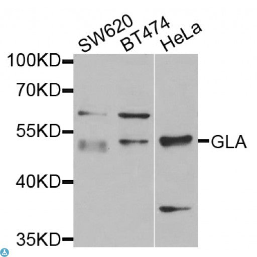 Buy Anti-GLA Antibody Online from St John Labs
