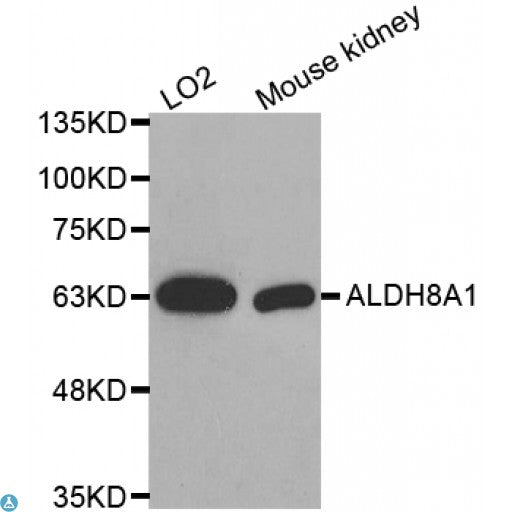Buy Anti-ALDH8A1 Antibody Online from St John Labs